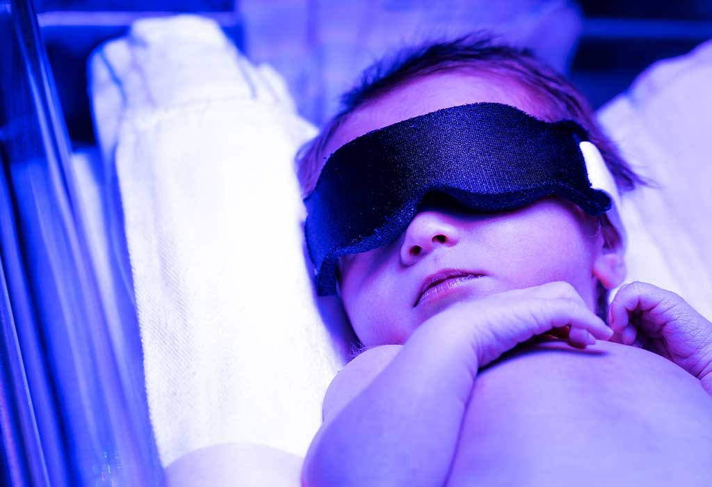 baby receiving phototherapy