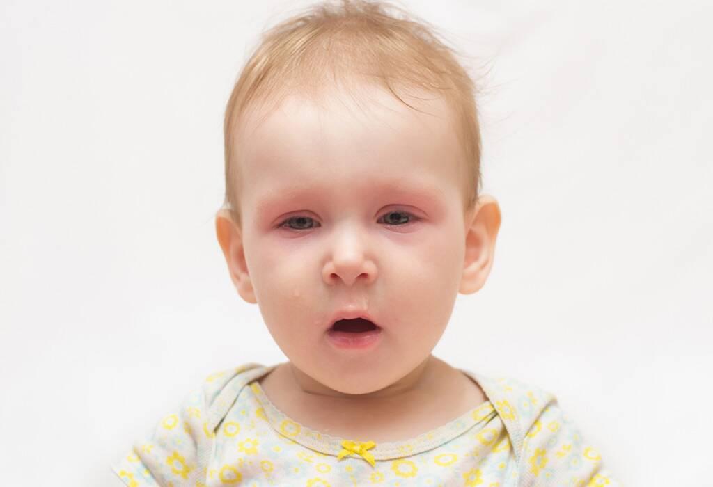 बाळांच्या छातीत कफ होणे: कारणे, लक्षणे आणि घरगुती उपाय