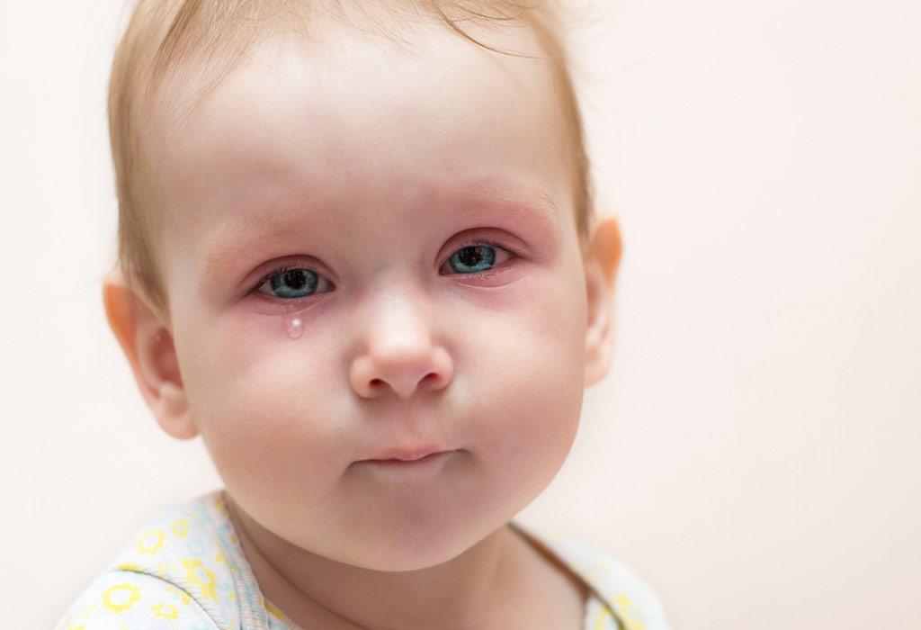 बाळाच्या डोळ्याच्या संसर्गासाठी १० सर्वोत्तम घरगुती उपचार