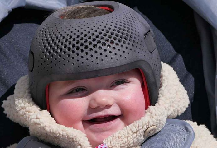 Why Do Some Babies Need to Wear a Helmet